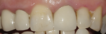 After picture of white filling buildup in a patient from Uxbridge at our Ickenham dentist