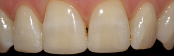 After picture of white filling buildup in our second patient from Ickenham at our Uxbridge dentist