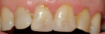 After picture of white filling buildup in our third patient from Ickenham at our Uxbridge dentist