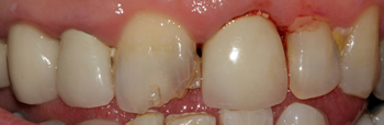 Before picture of white filling buildup in a patient from Uxbridge at our Ickenham dentist