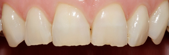 Before picture of white filling buildup in our second patient from Ickenham at our Uxbridge dentist