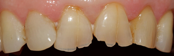 Before picture of white filling buildup in our third patient from Ickenham at our Uxbridge dentist