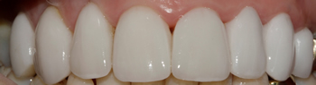 After picture of veneers teeth in a patient from Ickenham at our dentist in Uxbridge