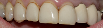 Before picture of veneers teeth in a patient from Ickenham at our dentist in Uxbridge