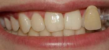 A closeup of one of our Ickenham based dental patients after tooth whitening at